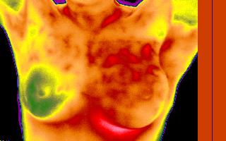 Termografia infravermelha digital – exame 100% seguro, sem dor e não invasivo